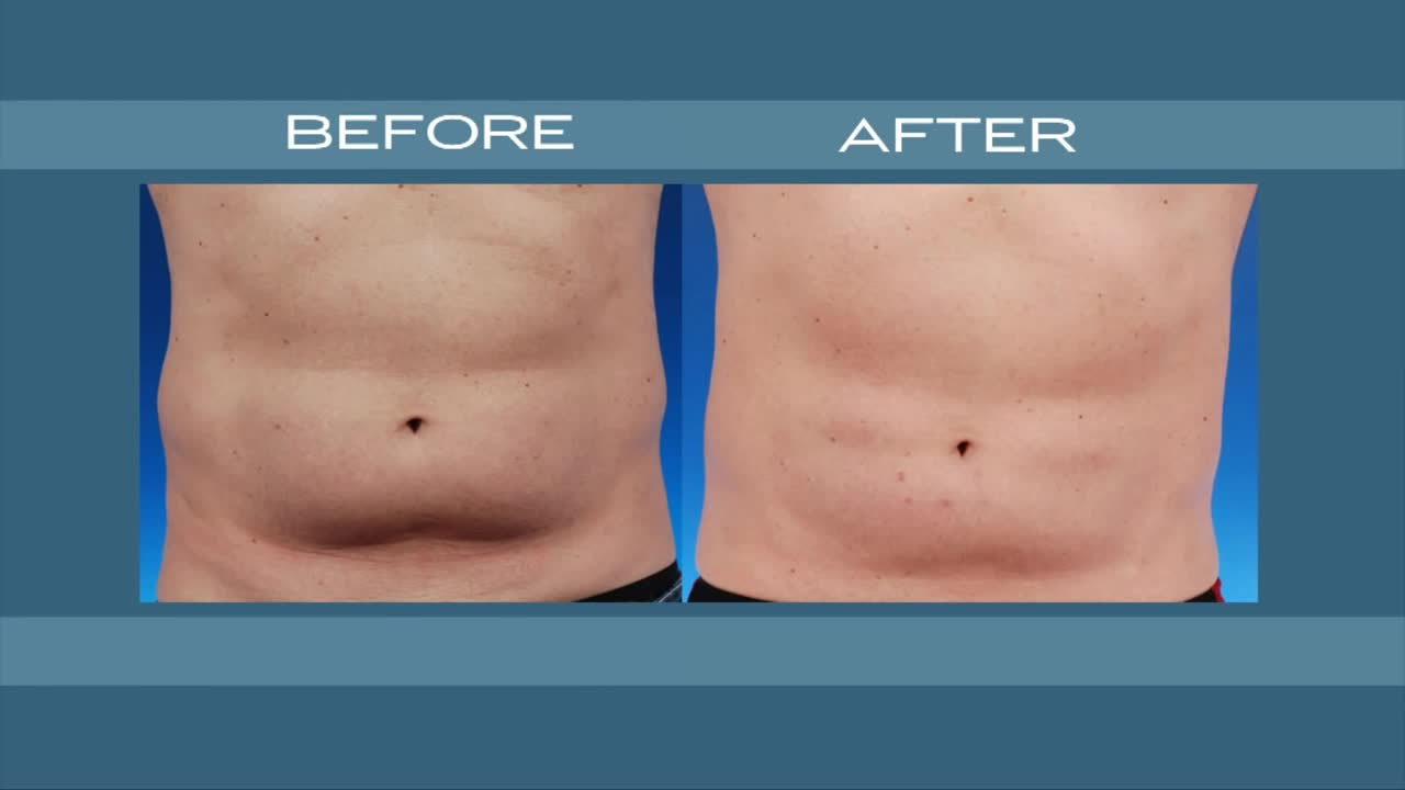 CoolSculpting in NYC