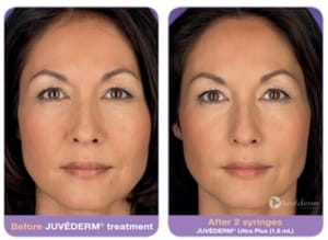 Dermal Fillers NJ