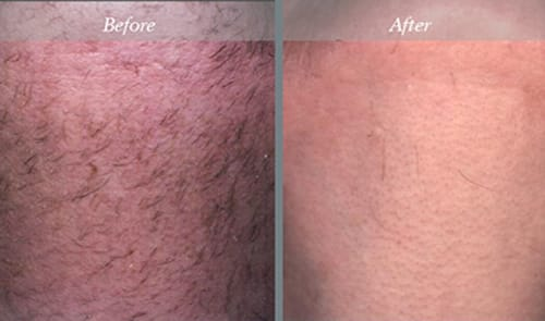 NJ Laser Hair Removal